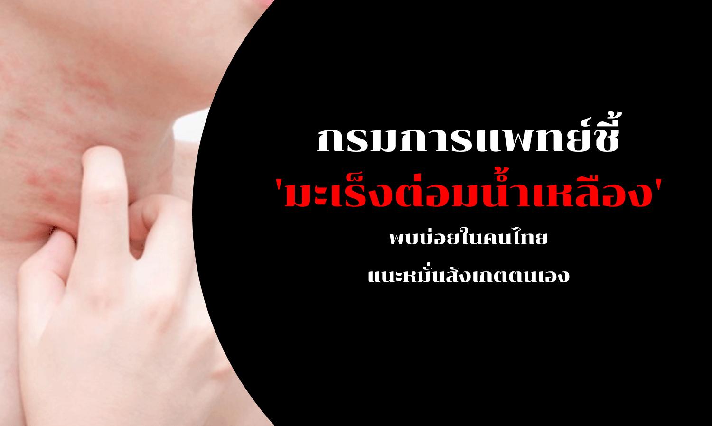 กรมการแพทย์ชี้ 'มะเร็งต่อมน้ำเหลือง' พบบ่อยในคนไทย แนะหมั่นสังเกตตนเอง